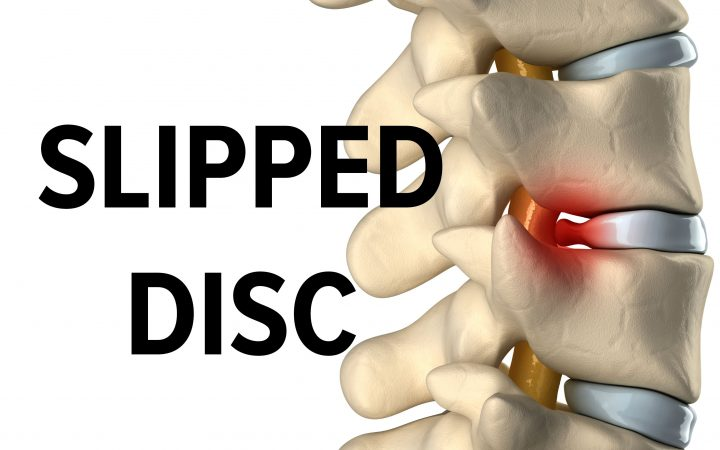 slipped disc example